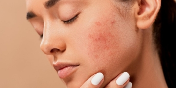 acne covid-19 mujeres mascarillas Ovario poliquístico