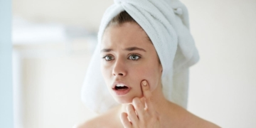 anticonceptivos orales y el acné adulto en mujeres