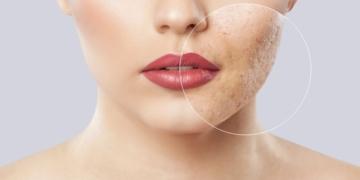consejos mejorar acne facial