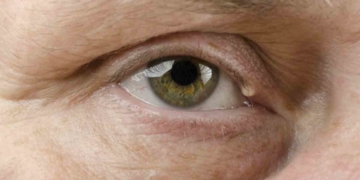 Bolita de grasa en el ojo por los triglicéridos