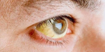 piel amarilla vitamina B12
