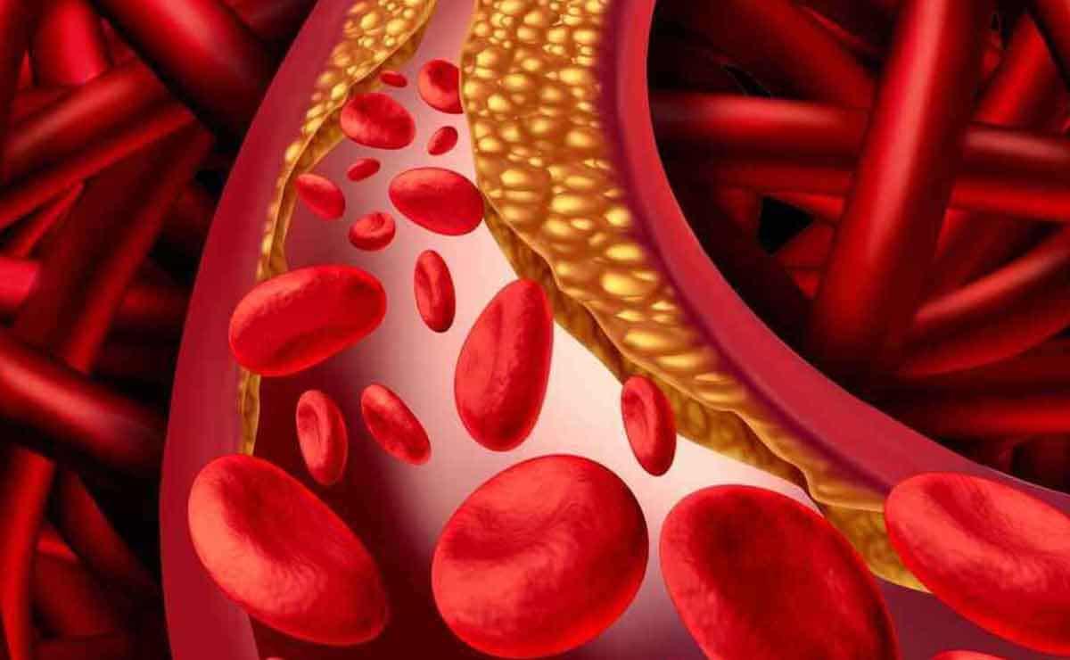 Triglicéridos en la sangre