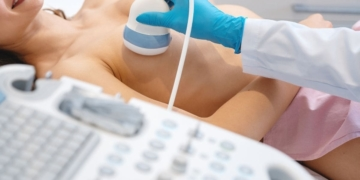 cancer de mama sistema inmunitario
