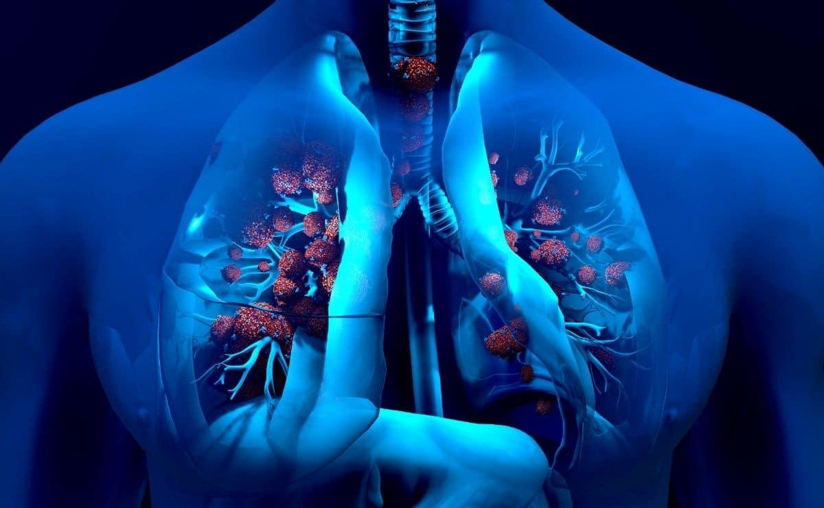 Infección vía respiratoria vitamina D