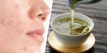 te verde acne