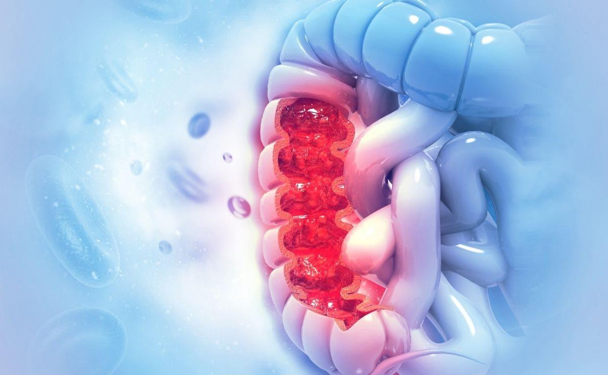 vitamina D cáncer de colon