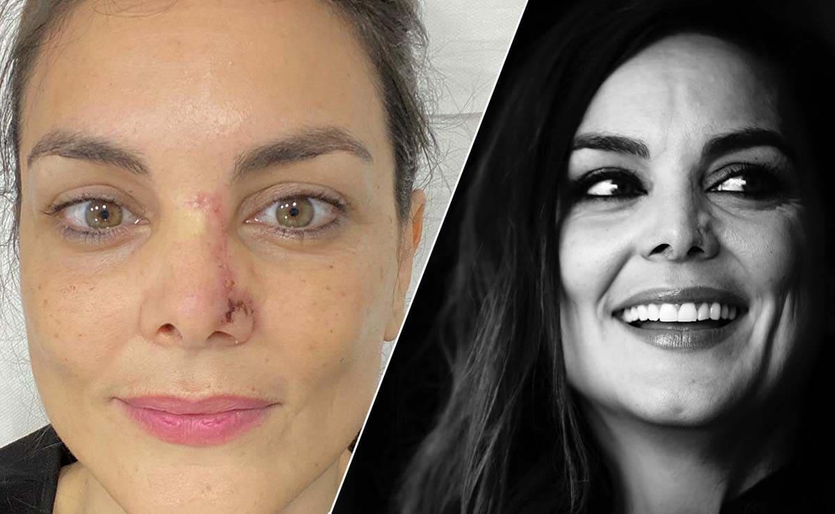 Monica Carrillo antes y despues cancer