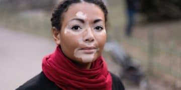 Remedio casero cura vitiligo