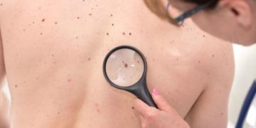 cáncer de piel