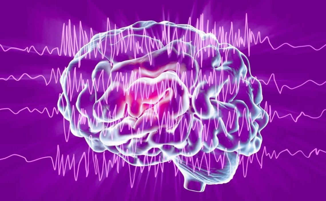 neurología epilepsia
