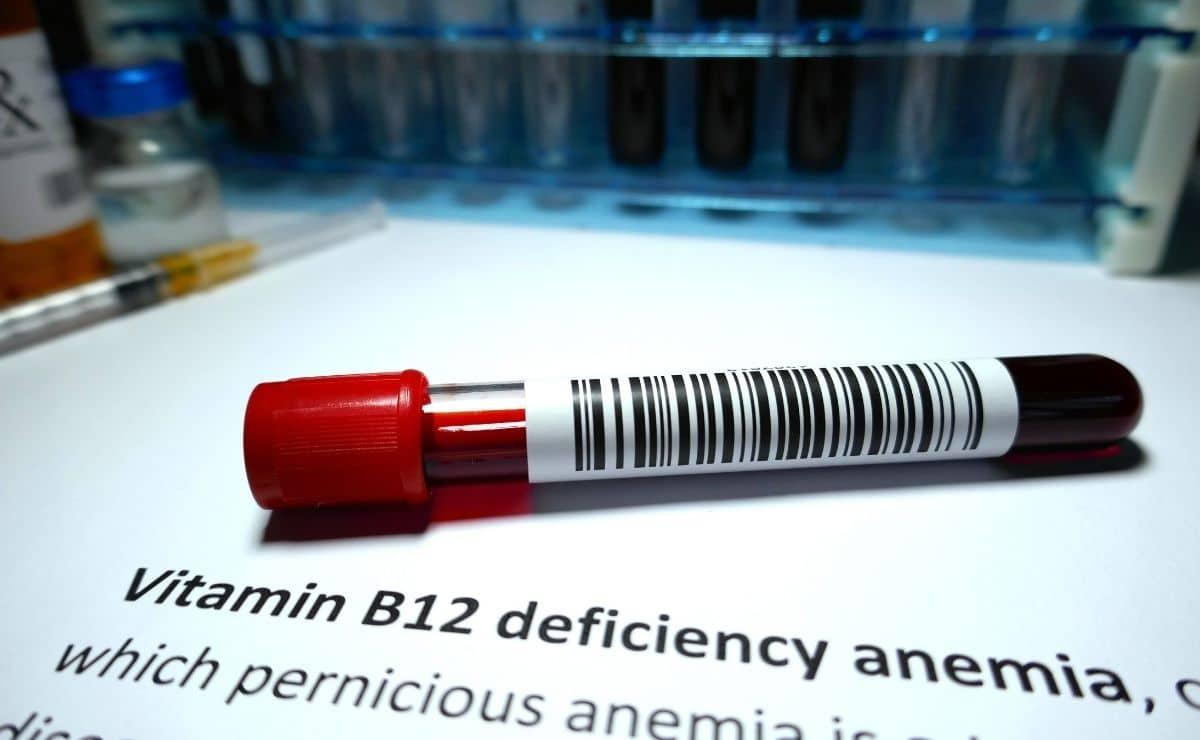 Deficiencia de vitamina B12