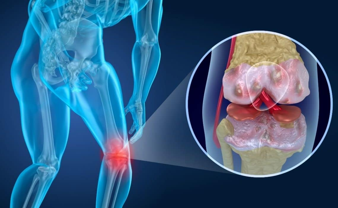 vitamina D osteoporosis salud