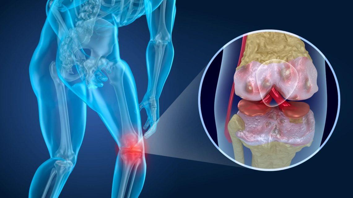 Bicarbonato de sodio artritis