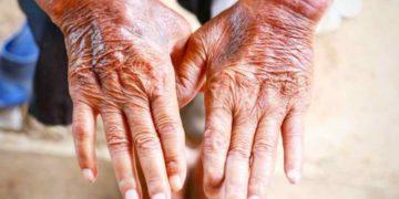 Rehabilitación física en pacientes con esclerodermia