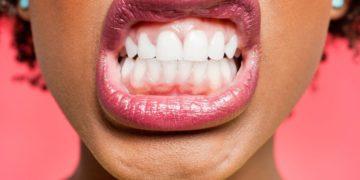 citricos dientes encias