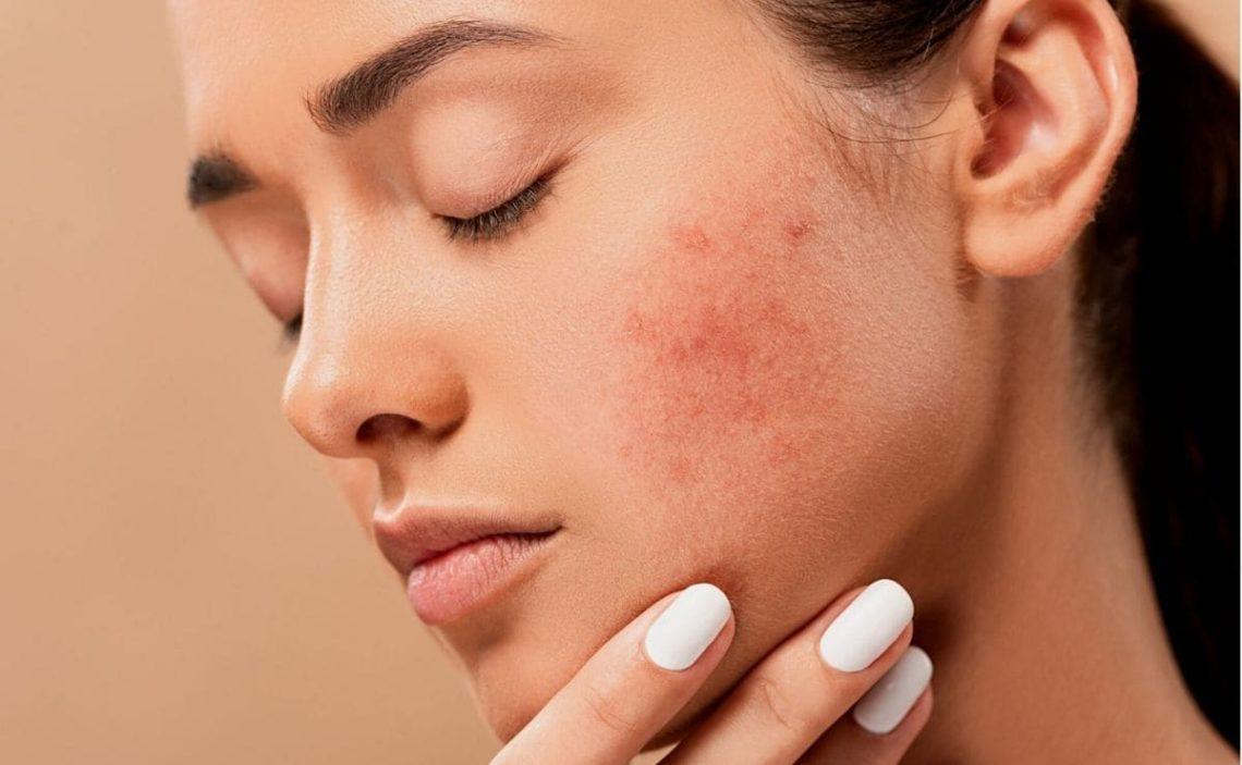 acné enfermedad