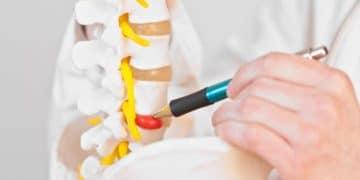 Hernia discal enfermedad