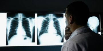 EEUU cancer de pulmon