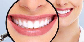 Remedios caseros sarro dental bicarbonato de sodio