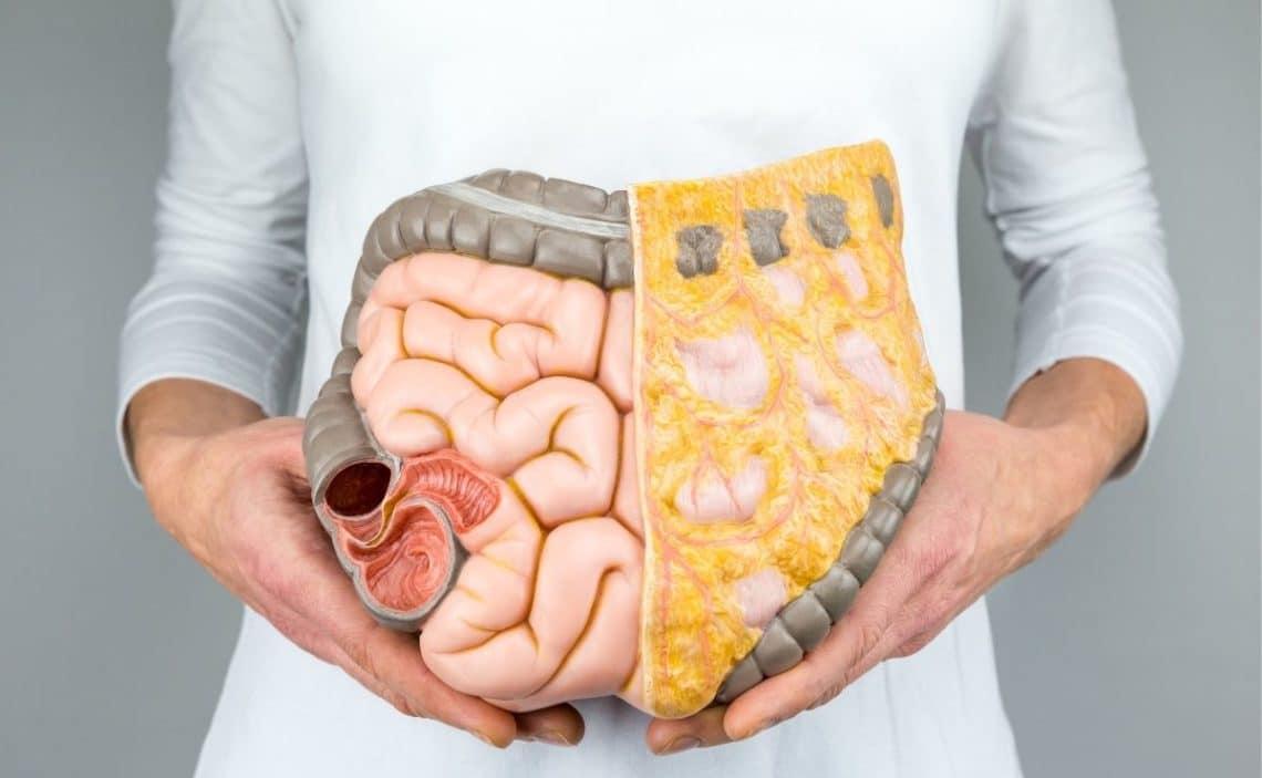 vitamina D colon irritable
