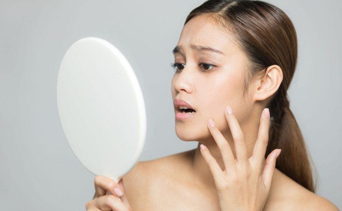eliminar piel manchas