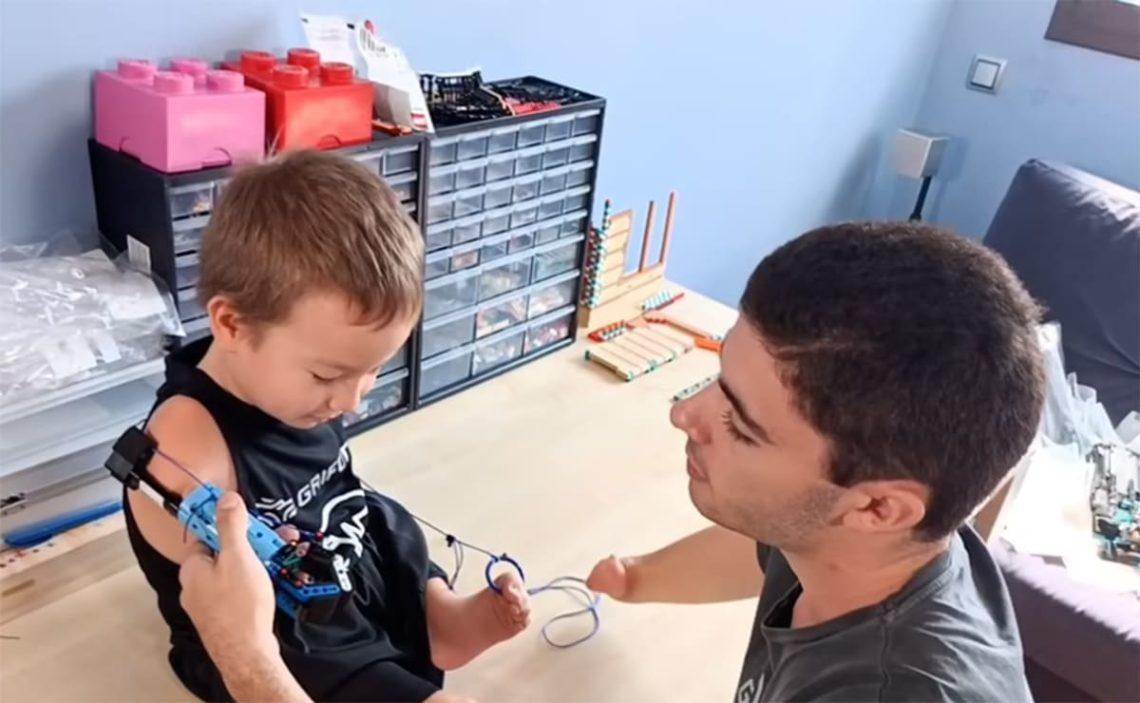 Beknur David Aguilar Discapacidad prótesis