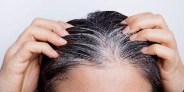 Bicarbonate of soda gray hair