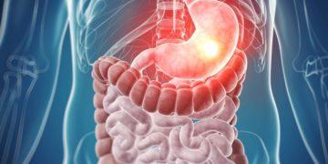 cáncer colorrectal vitamina D