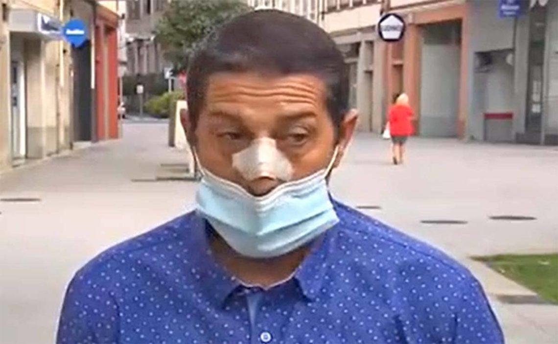 Jose Manuel Gomez paliza amigo con discapacidad Galicia