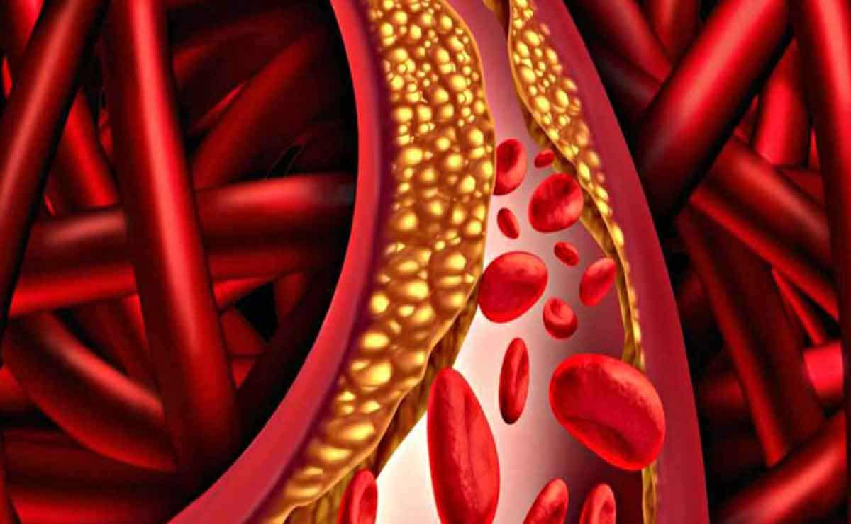 Triglycerides in the blood