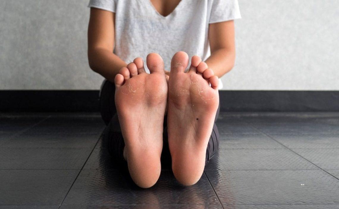 bicarbonato de sodio callos pies