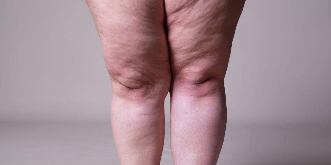 perder peso grasa piernas