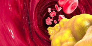 trigliceridos colesterol nivel alto