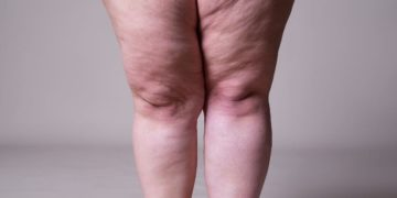4 tips for slimming leg fat in a healthy way