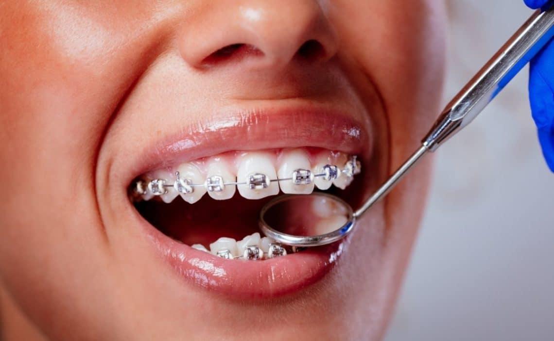 higiene bucal brackets